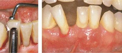 mobilità dei denti
