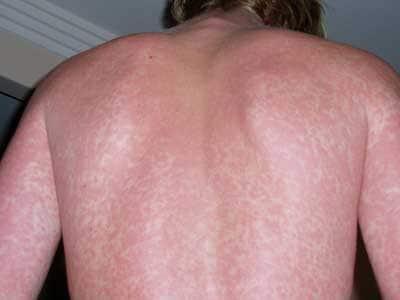 rash cutaneo di colore rosso scarlatto