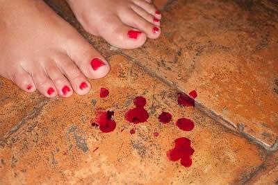 sangue dallano dopo rapporto