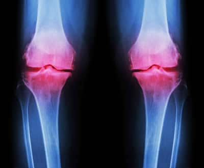 Sclerosi Ossea Cause E Sintomi