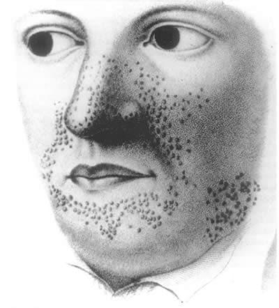 Sclerosi tuberosa