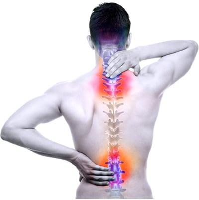 Sindrome di Reiter