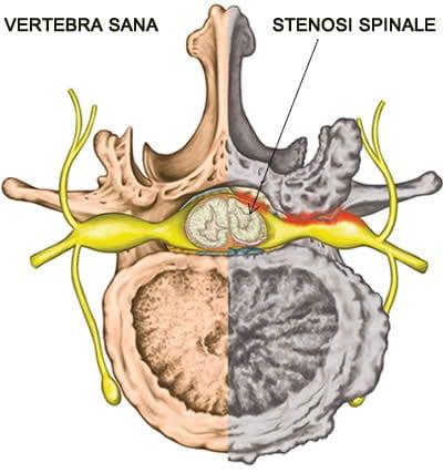Stenosi Spinale