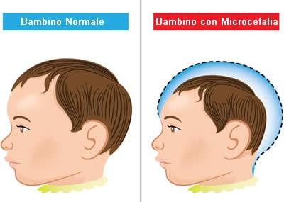 Virus Zika Microcefalia