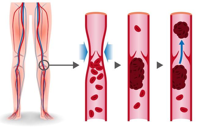 Formazione di un Embolo da Trombosi Venosa: la cattiva circolazione  determina il ristagno di sangue negli arti inferiori, che a sua volta facilita la formazione di coaguli di sangue (trombi). Da questi trombi possono quindi staccarsi dei frammenti (emboli), che il sangue può trasportare fino alle arterie polmonari dove possono causare occlusioni (embolia polmonare)