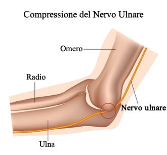 Sede della compressione nervosa del nervo ulnare, in presenza della sindrome del tunnel cubitale.