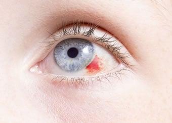 https://www.my-personaltrainer.it/imgs/2018/02/08/rottura-capillari-dell-occhio-orig.jpeg