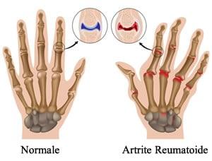 https://www.my-personaltrainer.it/imgs/2018/02/13/dolori-alle-dita-delle-mani-artrite-reumatoide-orig.jpeg
