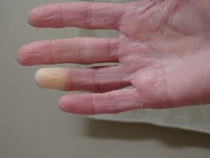 Gonfiore alle articolazioni delle dita senza dolore, le...