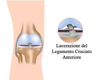 https://www.my-personaltrainer.it/imgs/2018/02/19/lacerazione-legamento-crociato-anteriore-orig.jpeg