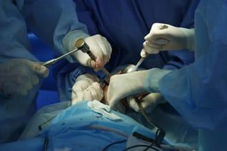 http://www.my-personaltrainer.it/imgs/2018/02/22/sindrome-di-treacher-collins-chirurgia-maxillo-facciale-orig.jpeg