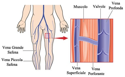 http://www.my-personaltrainer.it/imgs/2018/02/26/vena-safena-valvole-orig.jpeg