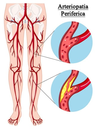 http://www.my-personaltrainer.it/imgs/2018/03/12/arteriopatia-periferica-agli-arti-inferiori-orig.jpeg