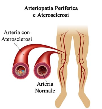 https://www.my-personaltrainer.it/imgs/2018/03/12/arteriopatia-periferica-aterosclerosi-orig.jpeg
