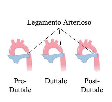 http://www.my-personaltrainer.it/imgs/2018/03/12/coartazione-aortica-tipologie-nei-dettaglia-orig.jpeg