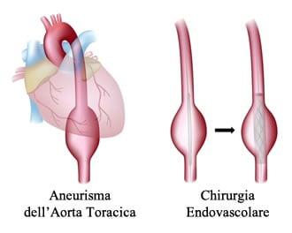 http://www.my-personaltrainer.it/imgs/2018/03/15/aneurisma-dell-aorta-chirurgia-endovascolare-orig.jpeg