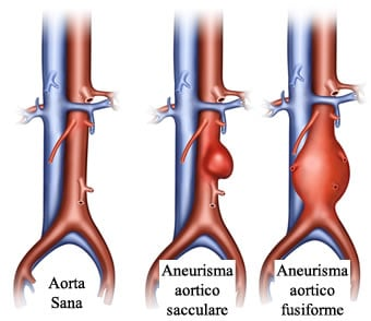 http://www.my-personaltrainer.it/imgs/2018/03/15/aneurisma-dell-aorta-forme-orig.jpeg