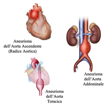 https://www.my-personaltrainer.it/imgs/2018/03/15/aneurisma-dell-aorta-le-varie-tipologie-orig.jpeg