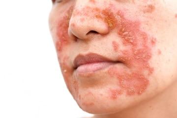 http://www.my-personaltrainer.it/imgs/2018/03/15/dermatite-seborroica-orig.jpeg