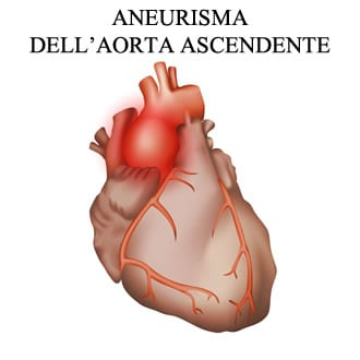http://www.my-personaltrainer.it/imgs/2018/03/16/aorta-ascendente-aneurisma-orig.jpeg