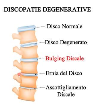 https://www.my-personaltrainer.it/imgs/2018/03/20/bulging-discale-e-altre-discopatie-orig.jpeg