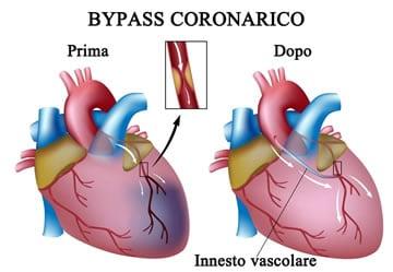 http://www.my-personaltrainer.it/imgs/2018/03/23/coronarie-ostruite-bypass-coronarico-orig.jpeg