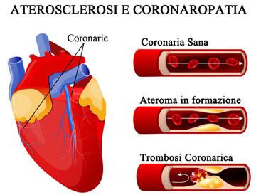 http://www.my-personaltrainer.it/imgs/2018/03/23/coronarie-ostruite-e-aterosclerosi-orig.jpeg