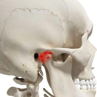 http://www.my-personaltrainer.it/imgs/2018/03/28/osso-temporale-articolazione-temporo-mandibolare-orig.jpeg