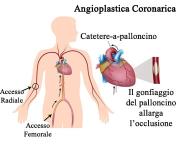 https://www.my-personaltrainer.it/imgs/2018/03/30/stent-coronarico-e-angioplastica-coronarica-orig.jpeg