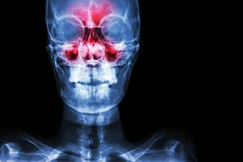 https://www.my-personaltrainer.it/imgs/2018/04/21/sinusite-mascellare-diagnosi-orig.jpeg