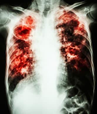 http://www.my-personaltrainer.it/imgs/2018/04/28/fibrosi-polmonare-idiopatica-orig.jpeg