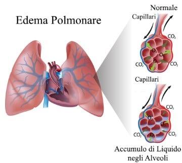 https://www.my-personaltrainer.it/imgs/2018/05/04/malattia-polmonare-edema-polmonare-orig.jpeg