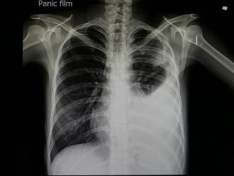 http://www.my-personaltrainer.it/imgs/2018/05/12/polmonite-virale-diagnosi-orig.jpeg