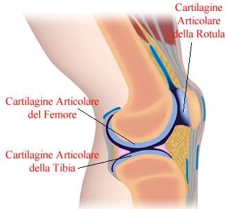 Lesioni cartilaginee e artrosi del ginocchio