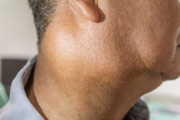 piccola ghiandola sul collo