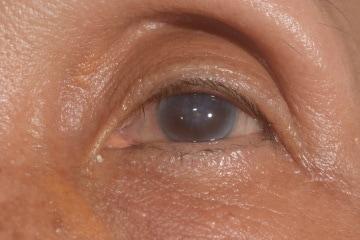 https://www.my-personaltrainer.it/imgs/2018/07/14/edema-corneale-2-orig.jpeg