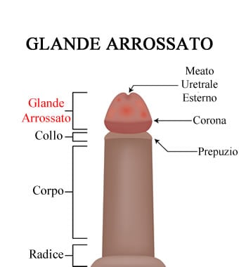 https://www.my-personaltrainer.it/imgs/2018/07/18/glande-arrossato-anatomia-orig.jpeg