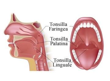 https://www.my-personaltrainer.it/imgs/2018/09/22/faringe-tonsille-orig.jpeg