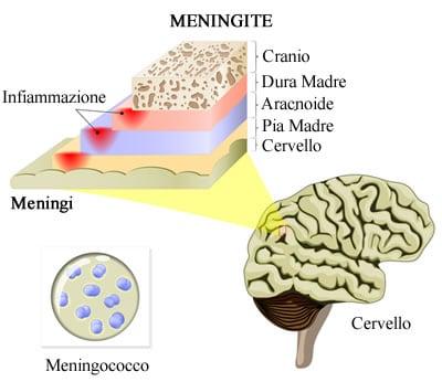 https://www.my-personaltrainer.it/imgs/2018/09/22/meningi-patologie-orig.jpeg