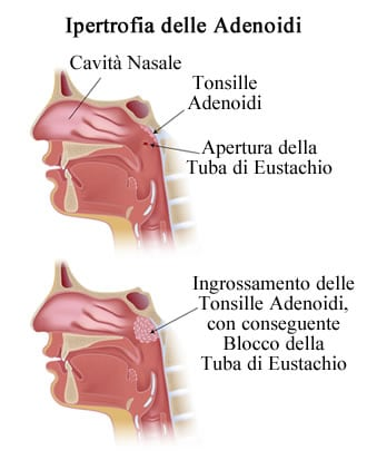 https://www.my-personaltrainer.it/imgs/2018/09/25/faringe-ipertrofia-delle-adenoidi-orig.jpeg