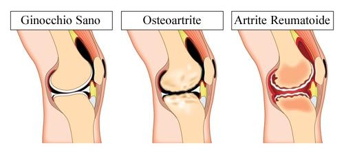 Stati infiammatori del tendine rotuleo