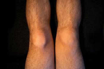 Come si deve curare il ginocchio gonfio
