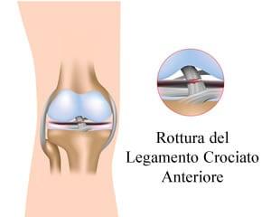 https://www.my-personaltrainer.it/imgs/2018/10/02/ginocchio-gonfio-rottura-del-legamento-crociato-anteriore-orig.jpeg