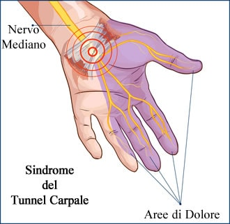 https://www.my-personaltrainer.it/imgs/2018/10/06/dita-della-mano-patologie-orig.jpeg
