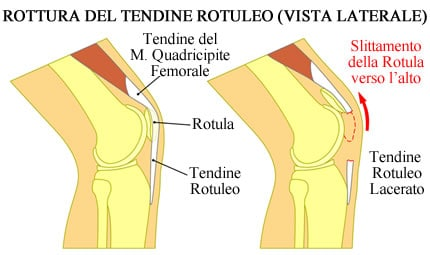 https://www.my-personaltrainer.it/imgs/2018/10/09/tendine-rotuleo-rottura-del-tendine-orig.jpeg