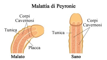https://www.my-personaltrainer.it/imgs/2018/11/05/impotenza-malattia-di-peyronie-orig.jpeg