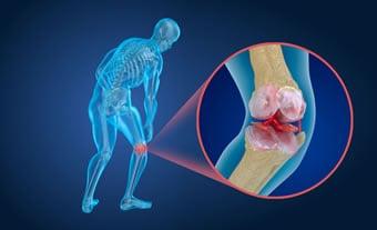 https://www.my-personaltrainer.it/imgs/2018/11/17/lesione-della-cartilagine-orig.jpeg