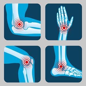 https://www.my-personaltrainer.it/imgs/2018/11/17/lesione-della-cartilagine-sedi-piu-comuni-orig.jpeg