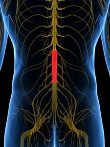 https://www.my-personaltrainer.it/imgs/2018/11/26/vertebre-lombari-cauda-equina-orig.jpeg