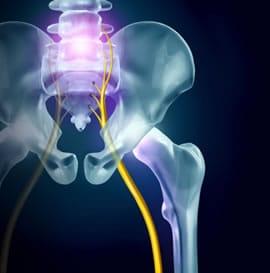 https://www.my-personaltrainer.it/imgs/2018/11/26/vertebre-lombari-sciatica-orig.jpeg